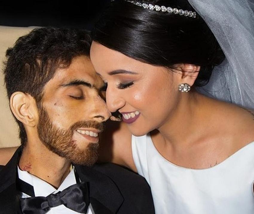Noivo morre de câncer dias depois após se casar em Maceió. Veja mais...